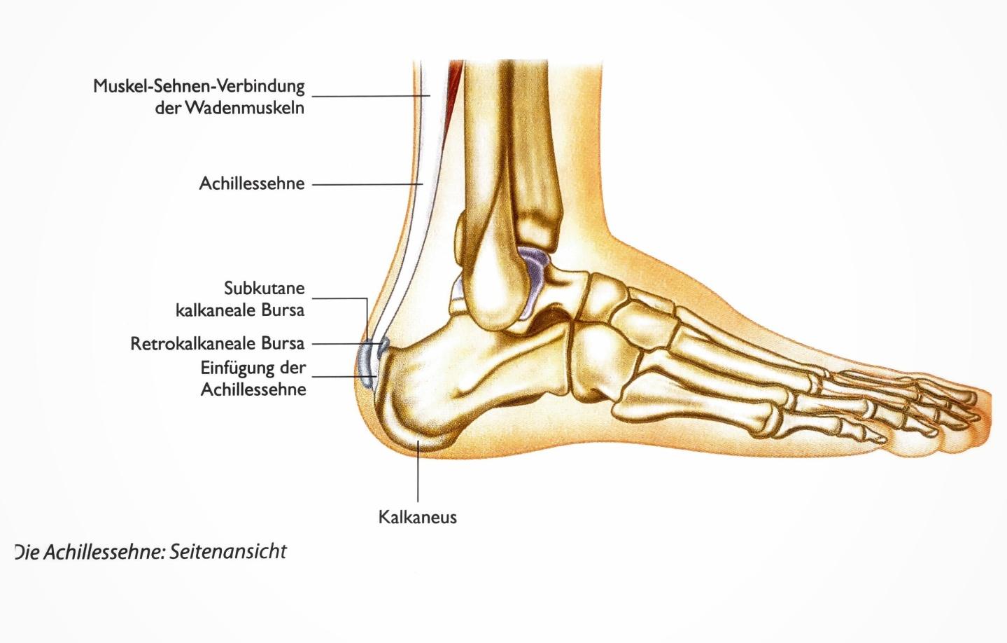 Achillessehne - Wenn Achilles nicht mehr springen kann